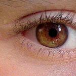 瞼がぴくぴく痙攣する病気をまとめてみました。