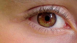 eye-419646
