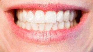 teeth-1652976